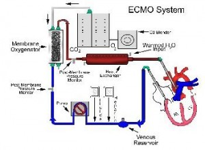 ecmo machine web