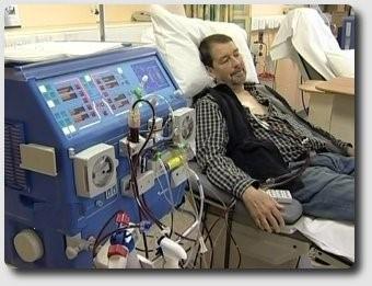 dialysis at Wythenshawe